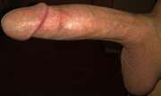 Photos de la bite de Wesh003, sexcock